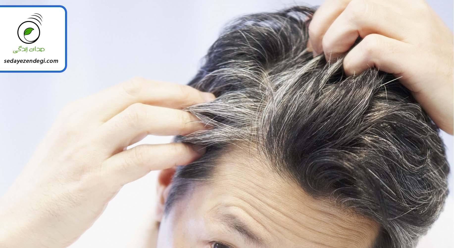 استرس عامل سفید شدن موی سر